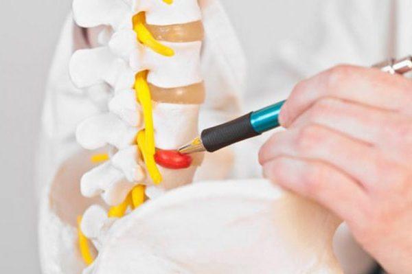 درمان دیسک کمر
